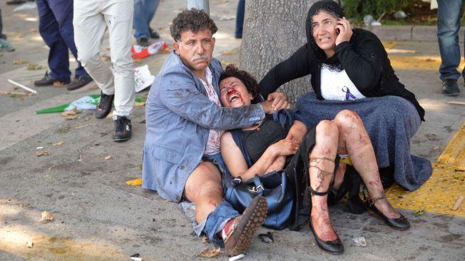 DØDSEKSPLOSJONENE: En rekke mennesker skal være drept og ytterligere titalls såret etter eksplosjonene i Ankara lørdag.
