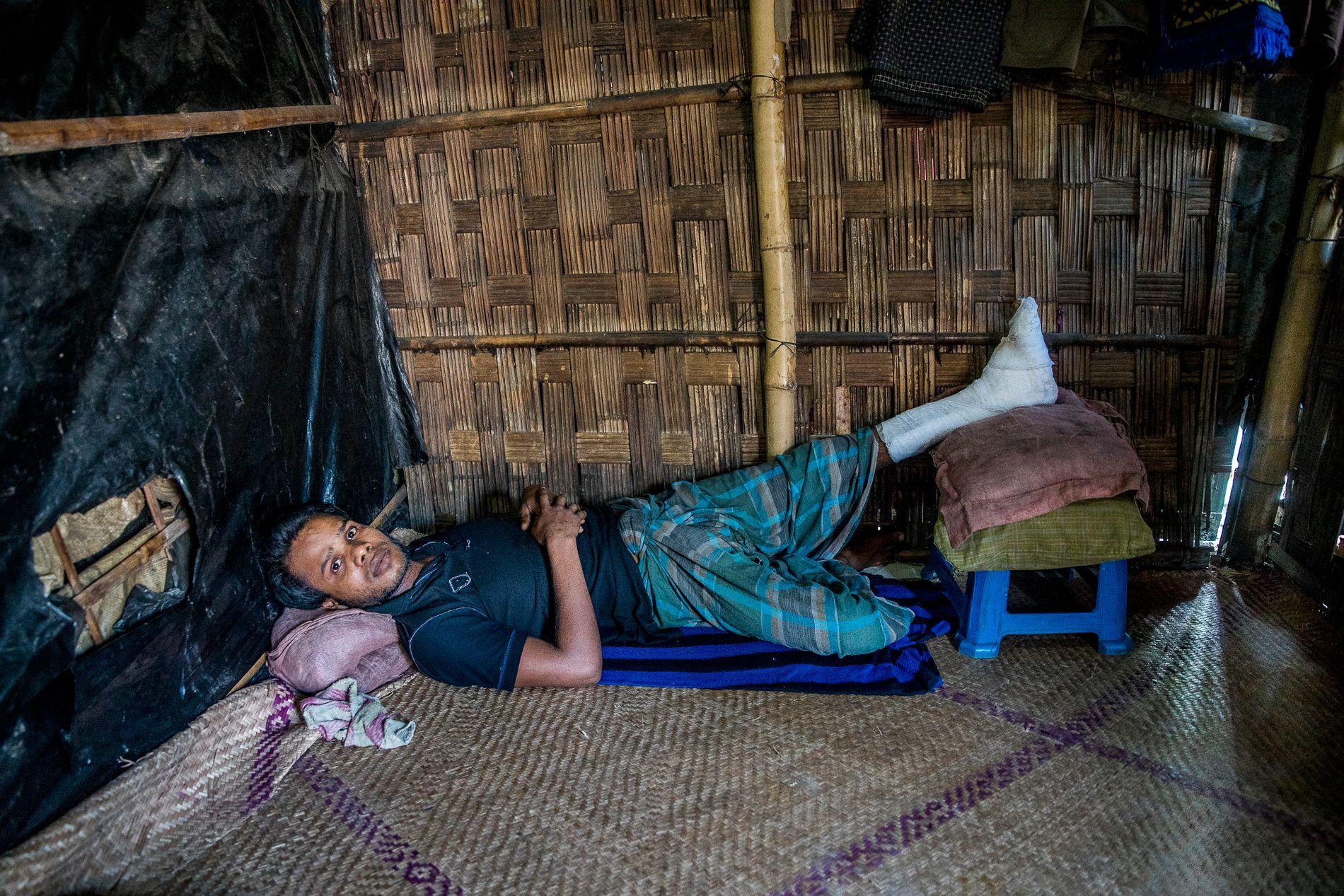 SKADET: Etter en svært strabasiøs flukt fra Myanmar ligger Mohammad Hasan (25) i ei stråhytte i utkanten av Cox's Bazar i Bangladesh.