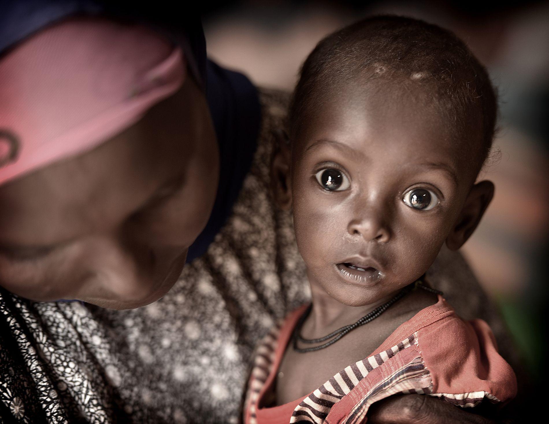 MATMANGEL: - Bare det siste året har ekstremvær, ofte i kombinasjon med væpnet konflikt, utløst matmangel i 23 land , skriver kronikkforfatteren. Bildet er av somaliske Maryan Ismail Jama (1).
