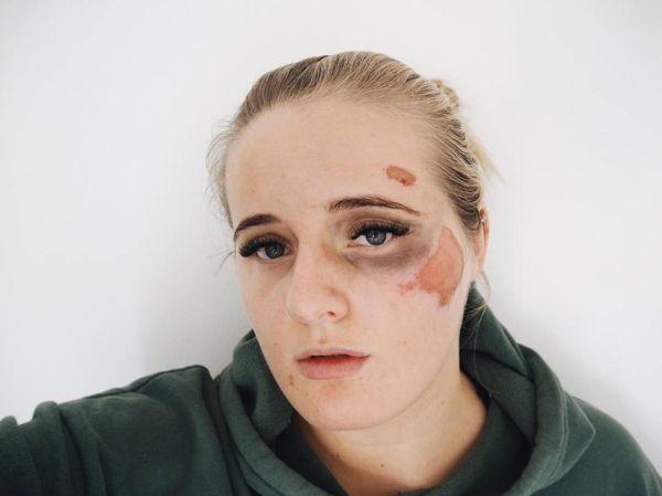 FORSLÅTT: Slik ser Martine Halvorsen ut i dag etter å ha blitt slått ned i 22-tiden i går.