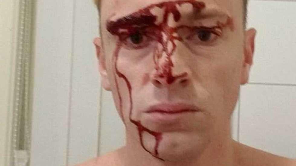 SLÅTT MED JERNSTANG: Da Trygve Digre Berg (37) forsøkte å stoppe innbruddstyven ble han selv slått med en stang i hodet. Digre Berg har gitt tillatelse til at VG bruker bildet.