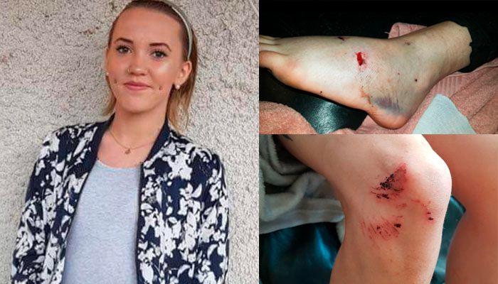 BITEMERKER: Heidi Jeanette Karlsbakk (17) ble bitt flere ganger av en hund natt til 16. mai i år. Politiet i Trondheim er nå anmeldt for vold eller uaktsom bruk av hund i tjeneste.