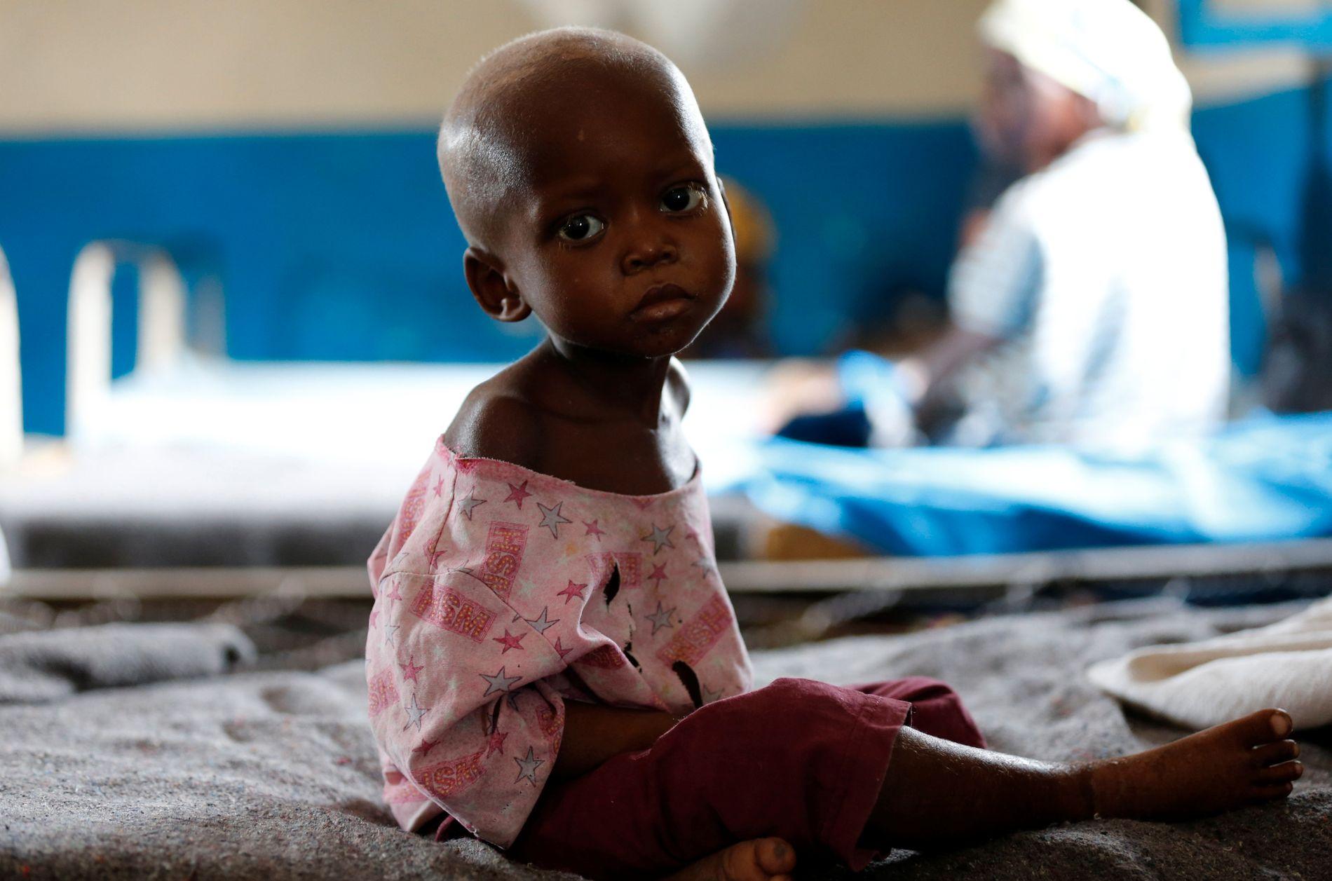 BARN LIDER: Ntumbabu Kalubi (4) lider av akutt underernæring. Her venter hun på å få legehjelp på sykehuset i Mwene Ditu i Kongo i mars i år.