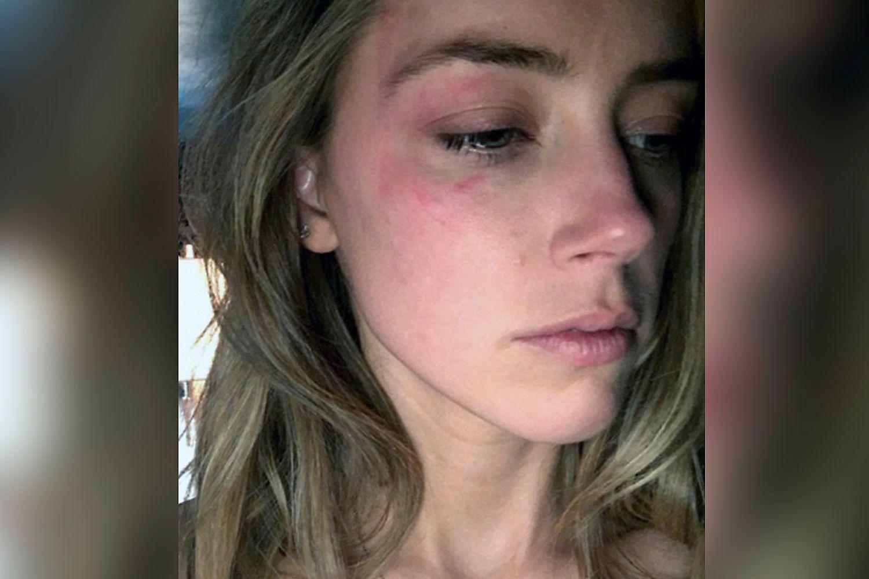 FORSLÅTT: Amber Heard anklaget Johnny Depp for å ha mishandlet henne etter at de to ble skilt i 2016. Hun delte selv dette bildet.