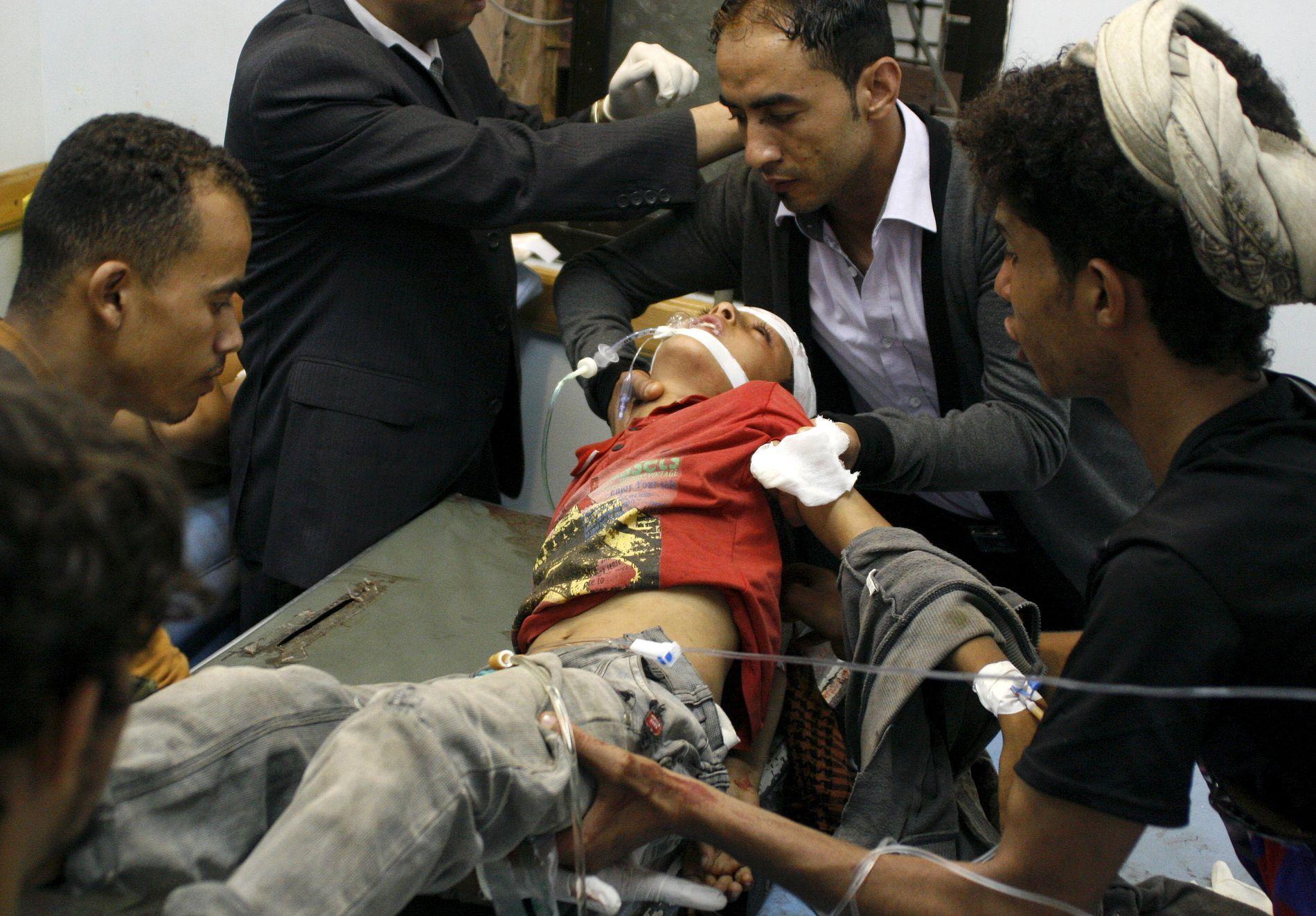 SKADET: En gutt hjelpes på sykehus etter at han ble skadet i kryssild mellom styrker som blant andre Emiratene støtter, og Houti-opprørere, i byen Taiz i mai.
