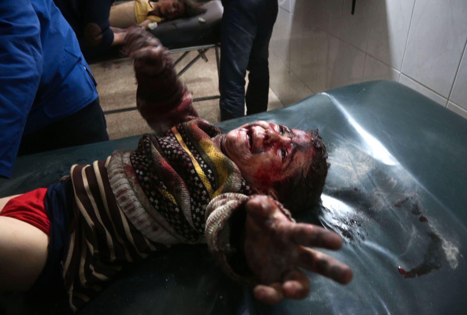 REDDET: En syrisk gutt hjelpes på sykehus mandag. Fotografen Abdulmonam Eassa var med å hjelpe ham. VG har fått bekreftet at gutten overlevde.