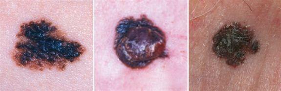 ØKNING: De siste fem årene har antallet tilfeller føflekkreft som påvises økt med hele 23 prosent hos både menn og kvinner sammenlignet med femårsperioden før. Føflekker som disse, som skifter farge, kan være et tegn på føflekkreft. Foto: KREFTFORENINGEN