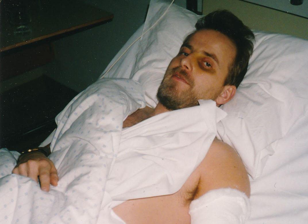 NÆRE PÅ: Lars Magnus Torp ble liggende flere uker på sykehus i Bergen etter fregattulykken i 1994.