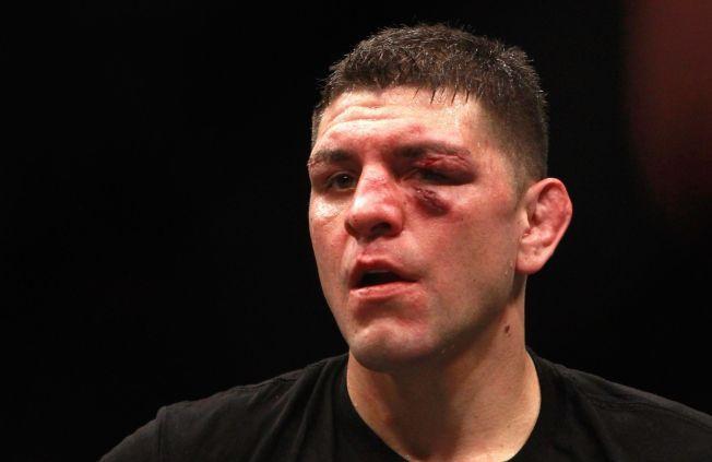 KONTROVERSIELL: Nick Diaz avbildet etter kampen mot Anderson Silva i januar.