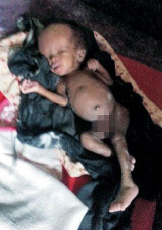 SYK OG FEILERNÆRT: Ismail Taranger skal ha blitt funnet på gaten like etter fødselen. Her er han to måneder gammel og veier 2,2 kilo.